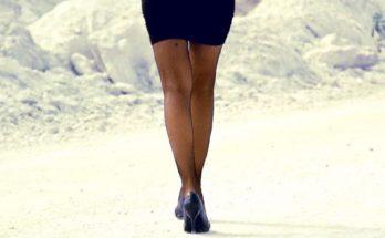 От чего у женщин появляются синяки на ногах без ударов